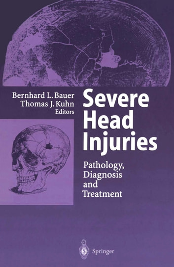 Severe Head Injuries - Pathology, Diagnosis and Treatment ebook by