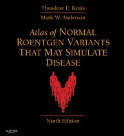 Atlas of Normal Roentgen Variants That May Simulate Disease - Expert Consult - Enhanced Online Features ebook by Theodore E. Keats,Mark W. Anderson