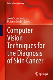 Computer Vision Techniques for the Diagnosis of Skin Cancer ebook by Jacob Scharcanski,M. Emre Celebi