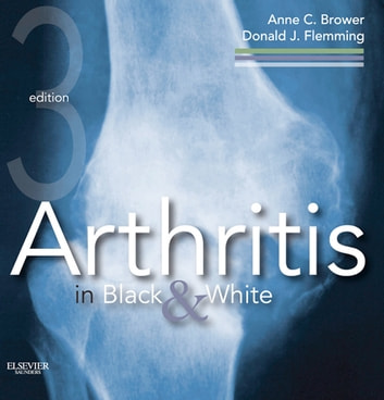 Arthritis in Black and White ebook by Anne C. Brower,Donald J. Flemming