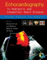 Echocardiography in Pediatric and Congenital Heart Disease - From Fetus to Adult ebook by