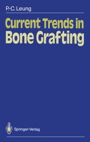 Current Trends in Bone Grafting ebook by Robert B. Duthie,Ping-Chung Leung