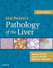 MacSween's Pathology of the Liver E-Book ebook by Alastair D. Burt, MD, Linda D. Ferrell,...