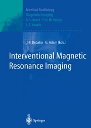 Interventional Magnetic Resonance Imaging ebook by Jörg F. Debatin,A.L. Baert,R.W. Günther,Gerhard Adam,G.K. von Schulthess