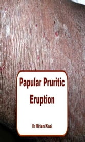 Papular Pruritic Eruption (PPE) ebook by Miriam Kinai