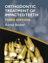 Orthodontic Treatment of Impacted Teeth ebook by Adrian Becker