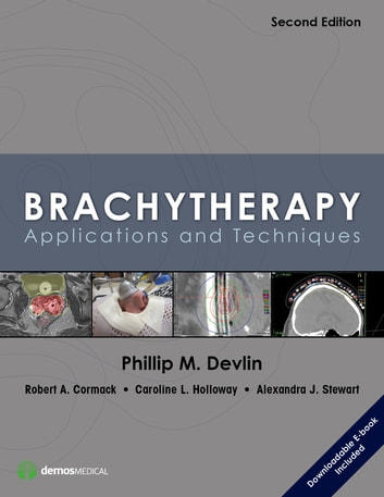 Brachytherapy, Second Edition - Applications and Techniques ebook by
