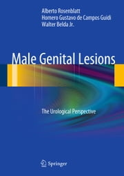 Male Genital Lesions - The Urological Perspective ebook by Alberto Rosenblatt,Homero Gustavo de Campos Guidi,Walter Belda Jr.