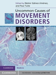 Uncommon Causes of Movement Disorders ebook by Néstor Gálvez-Jiménez, MD,Paul Tuite, MD