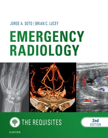 Emergency Radiology: The Requisites E-Book ebook by Jorge A Soto, MD,Brian C Lucey, MD