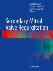 Secondary Mitral Valve Regurgitation ebook by Khalil Fattouch,Patrizio Lancellotti,Gianni D. Angelini