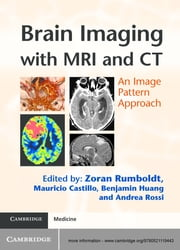 Brain Imaging with MRI and CT - An Image Pattern Approach ebook by Zoran Rumboldt, MD,Mauricio Castillo,Benjamin Huang,Andrea Rossi