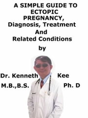 Ectopic Heartbeats, (Extrasystoles) A Simple Guide To The Condition, Diagnosis, Treatment And Related Conditions ebook by Kenneth Kee