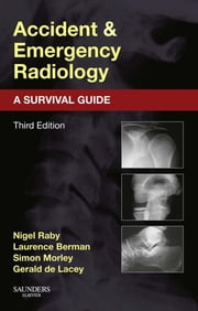 Accident and Emergency Radiology: A Survival Guide ebook by Nigel Raby,Laurence Berman,Simon Morley,Gerald de Lacey