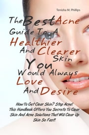 The Best Acne Guide To A Healthier And Clearer Skin You Would Always Love And Desire - How To Get Clear Skin? Stop Acne! This Handbook Offers You Secrets To Clear Skin And Acne Solutions That Will Clear Up Skin So Fast! ebook by Tenisha M. Phillips