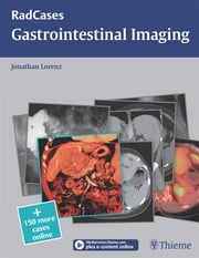 Gastrointestinal Imaging ebook by Jonathan M. Lorenz