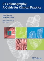 CT Colonography: A Guide for Clinical Practice ebook by Thomas Mang,Wolfgang Schima