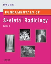 Fundamentals of Skeletal Radiology ebook by Clyde A. Helms