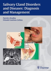 Salivary Gland Disorders and Diseases: Diagnosis and Management - Diagnosis and Management ebook by Orlando Guntinas-Lichius,Patrick J. Bradley