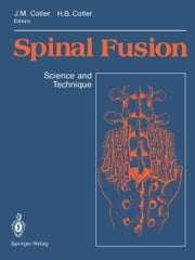 Spinal Fusion - Science and Technique ebook by Jerome M. Cotler,A.F. DePalma,Howard B. Cotler