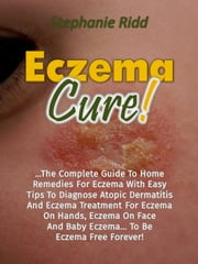 Eczema Cure!: The Complete Guide To Home Remedies For Eczema With Easy Tips To Diagnose Atopic Dermatitis And Eczema Treatment For Eczema On Hands, Eczema On Face And Baby Eczema... To Be Eczema Free ebook by Stephanie Ridd