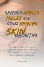 Remove Warts, Moles And Other Benign Skin Growths - Find Natural Warts Treatment, Wart Remedies, Mole Removal, Skin Tags Removal And Other Skin Problems Treatments ebook by Anna D. Wheeler