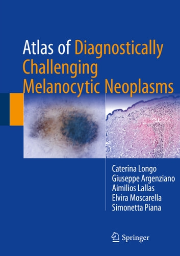 Atlas of Diagnostically Challenging Melanocytic Neoplasms ebook by Caterina Longo,Giuseppe Argenziano,Aimilios Lallas,Elvira Moscarella,Simonetta Piana