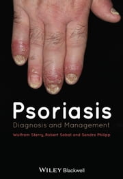 Psoriasis - Diagnosis and Management ebook by Wolfram Sterry,Robert Sabat,Sandra Philipp