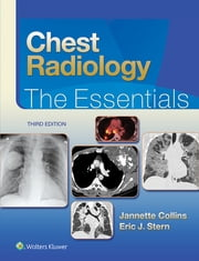 Chest Radiology - The Essentials ebook by Janette Collins,Eric J. Stern