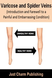 Varicose and Spider Veins (Introduction and Farewell to a Painful and Embarrassing Condition) ebook by Just Charm Publishing