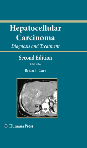 Hepatocellular Carcinoma - Diagnosis and Treatment ebook by