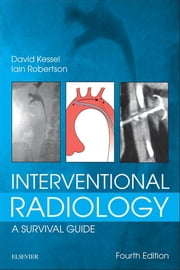 Interventional Radiology: A Survival Guide E-Book ebook by David Kessel, MB, BS,...