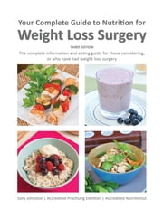 Your Complete Guide to Nutrition for Weight Loss Surgery ebook by Sally Johnston