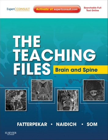 The teaching files brain and spine imaging e book ebook by girish m the teaching files brain and spine imaging e book ebook by girish m fandeluxe Choice Image