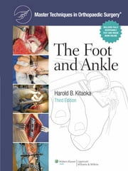Master Techniques in Orthopaedic Surgery: The Foot and Ankle ebook by Harold Kitaoka