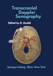 Transcranial Doppler Sonography ebook by Rune Aaslid