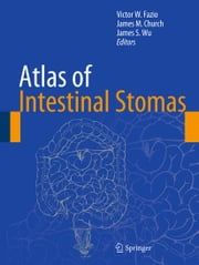 Atlas of Intestinal Stomas ebook by Victor W. Fazio,James M. Church,James S. Wu