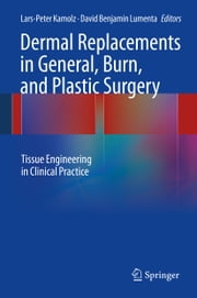 Dermal Replacements in General, Burn, and Plastic Surgery - Tissue Engineering in Clinical Practice ebook by Lars-Peter Kamolz,David Benjamin Lumenta
