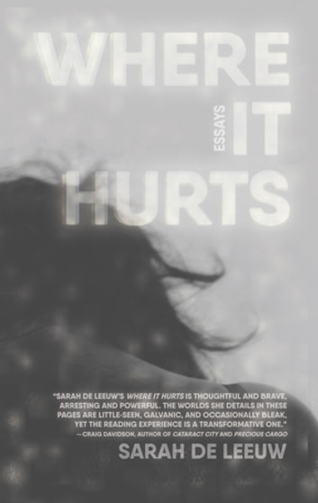 Where It Hurts eBook by Sarah de Leeuw