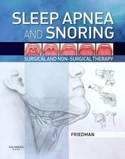 Sleep Apnea and Snoring - Surgical and Non-Surgical Therapy ebook by Michael Friedman