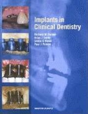 Implants in Clinical Dentistry ebook by Palmer, Richard M.