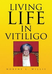 Living Life In Vitiligo ebook by Norene L. Willis