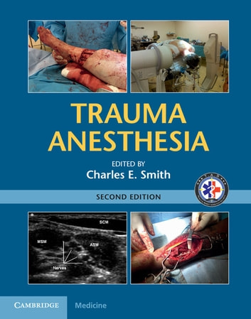 Trauma Anesthesia ebook by