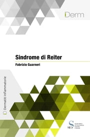 Sindrome di Reiter ebook by Fabrizio Guarnieri