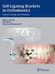 Self-ligating Brackets in Orthodontics - Current Concepts and Techniques ebook by Bjoern Ludwig,Dirk Bister