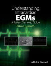 Understanding Intracardiac EGMs - A Patient Centered Guide ebook by Fred M. Kusumoto
