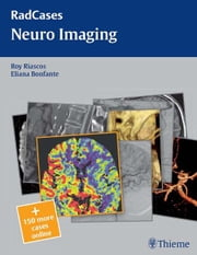 Neuro Imaging ebook by Roy Riascos,Eliana Bonfante