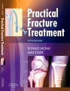 Practical Fracture Treatment ebook by Ronald McRae,Max Esser