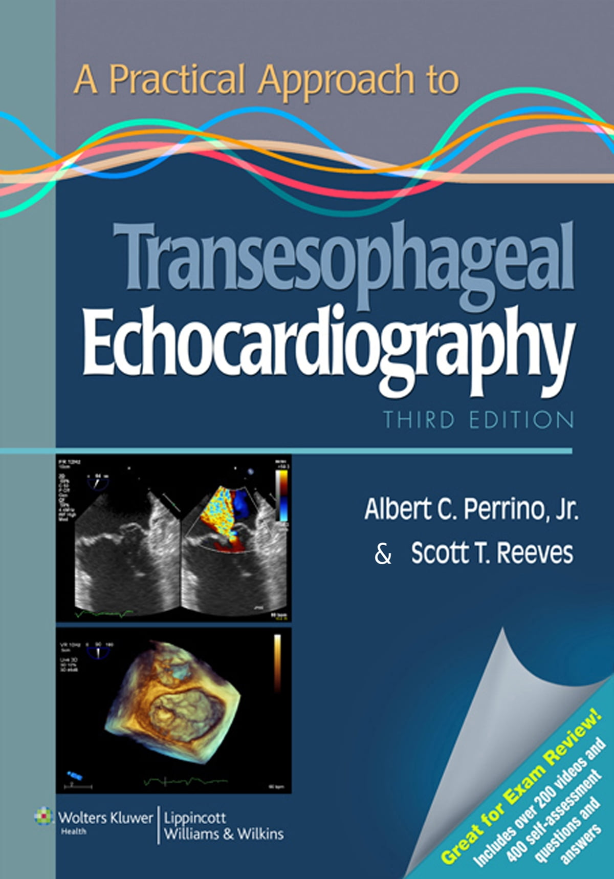 A Practical Approach to Transesophageal Echocardiography eBook by Albert C.  Perrino - 9781469830407 | Rakuten Kobo