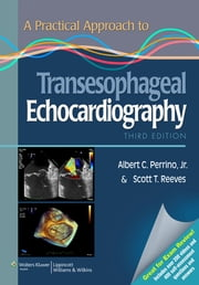 A Practical Approach to Transesophageal Echocardiography ebook by Albert C. Perrino,Scott T. Reeves